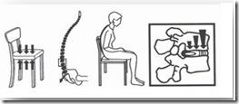 Slika 1. Prikaz položaja kralješnice i pritiska na diskus kod lošeg držanja pri sjedenj